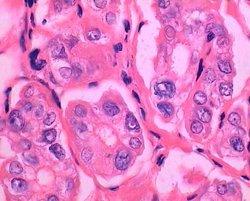 3 检查 编辑本段 甲状腺扫描 甲状腺扫描:因甲状腺癌组织般对放射性