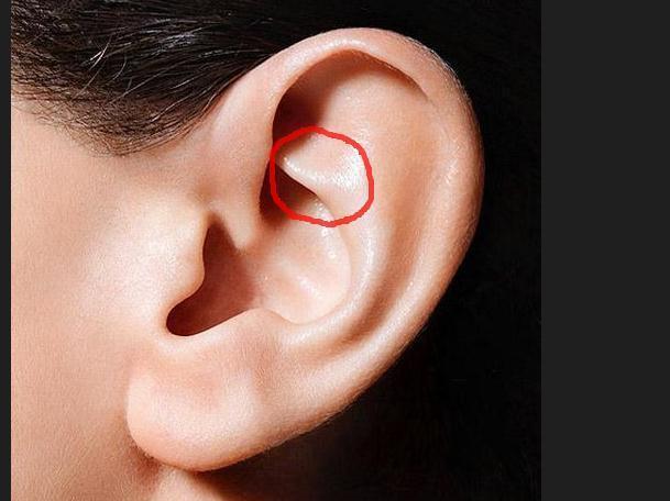 小孩子耳朵这个部位长了一个包