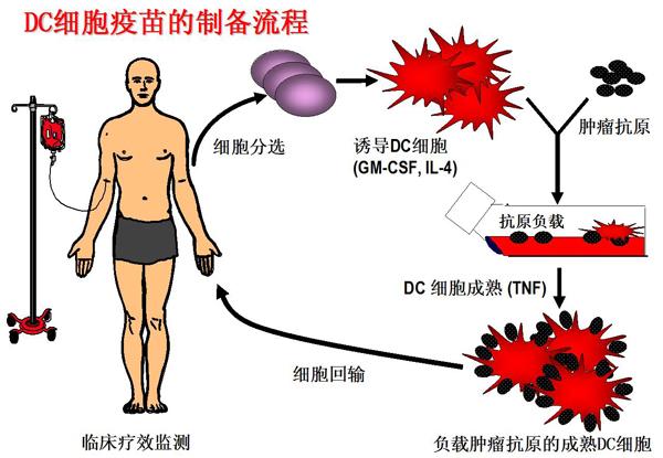 cik细胞)进行体外培养和扩增后回输到病人体内的方法