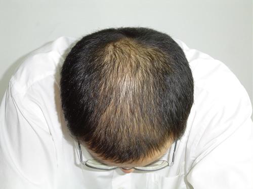 和女性脱发有不一样的地方吗