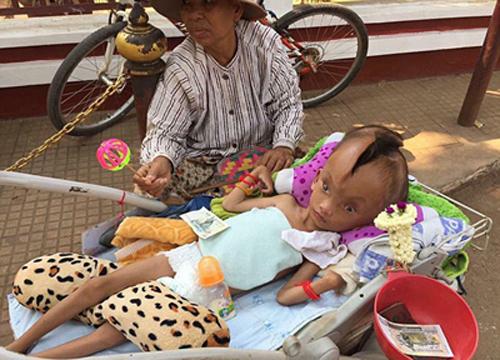 【转】北京时间     柬埔寨男孩天生头顶长裂缝 已有10厘米深 - 妙康居士 - 妙康居士~晴樵雪读的博客