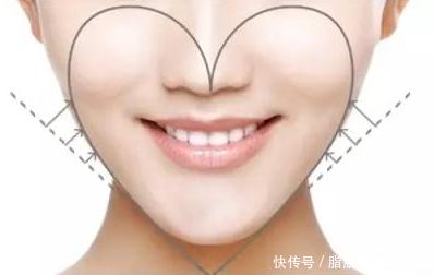 自体脂肪面部填充,打造人见人爱的心形脸