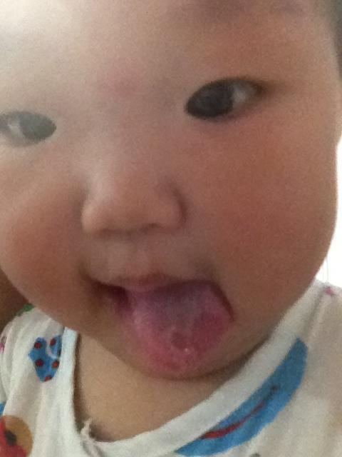 大家看夏宝宝舌头上怎么回事