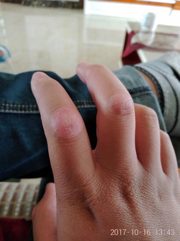 手指头关节长了一层硬皮一开始只是烫到了没注意到了上课一直用嘴咬