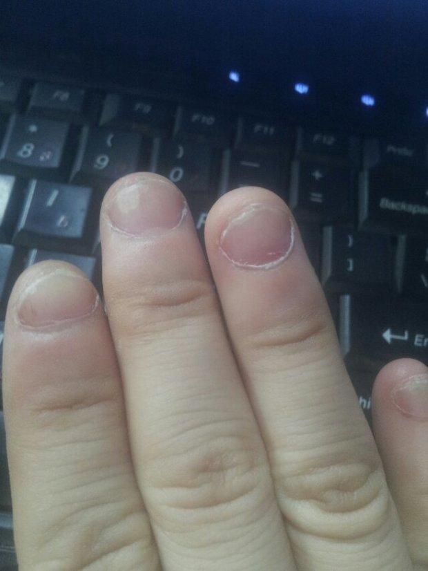 手指甲出现这种情况是怎么回事啊?