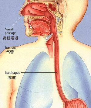 食道癌的症状和治疗