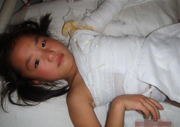 幼女幼教_刘姓女子长期虐待男友与前任女友所生的幼女,幼儿,今年2月她和男友