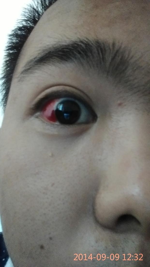 单只眼球充血_眼睛被重撞眼球充血怎么办