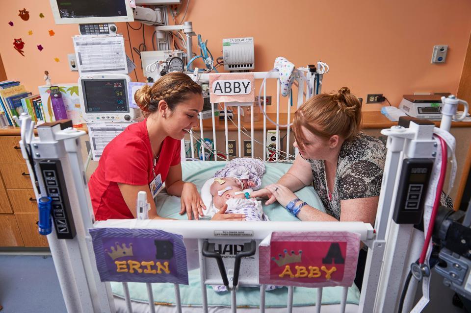 双胞胎罕见头部相连 30多名医护花11小时成功分离 -  - 真光 的博客