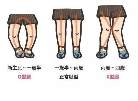 宝宝的X或O型腿到底正不正常?需不需要补钙?